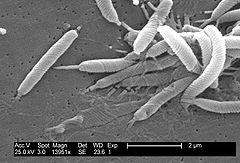 alimentacion anti acido urico comidas para disminuir acido urico valores de referencia de acido urico en orina al azar